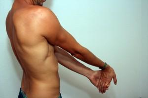 MS Et biceps 3